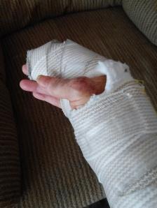 hand bandages